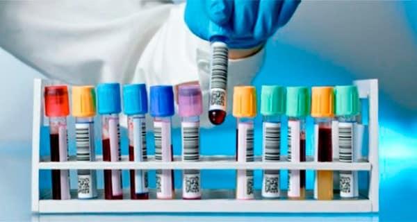 обследование на гормоны